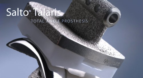 Total Ankle Replacement Salto Talaris